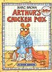 Arthur's Chicken Pox: An Arthur Adven...