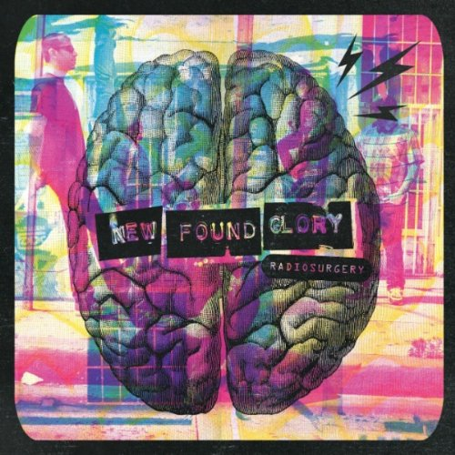 New Found Glory – Radiosurgery (Deluxe Edition) (2011) [FLAC]