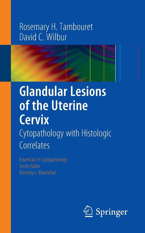 Glandular lesions cervix