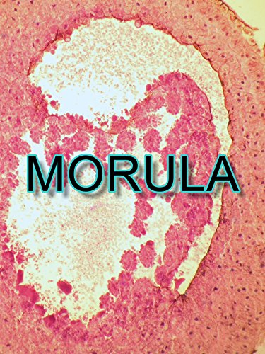 Morula on Amazon Prime Video UK