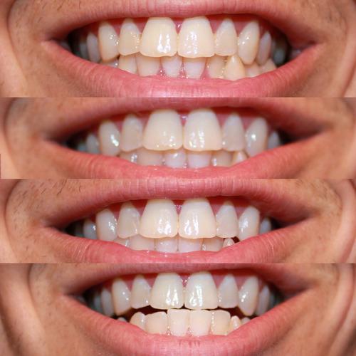 Amazon Com Ontel Miracle Teeth Whitener: Amazon.com: Rembrandt 2-Hour Whitening Kit: Beauty