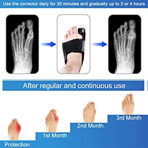 Vitoki Bunion Corrector Adjustable Bunion Splint Unisex Hallux Valgus Corrector for Home Use Nighttime Use 1 Pair Medium (Tamaño: Medium)