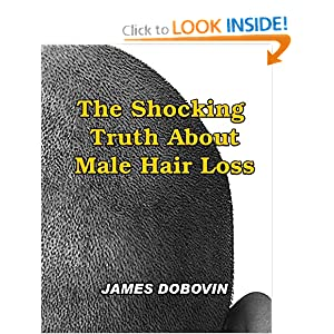 The Shocking Truth About Male Hair Loss: Secrets You Need to Know About Losing Hair So You Can Stop From Going Bald
