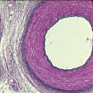 Amazon.com: Human Artery and Vein c.s. 7 µm Verhoeff's stain