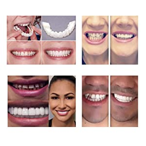 Yiwa Fake Upper + Lower Teeth Cover, Perfect Smile Comfort