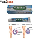 5PCS X Spider Vein Varicose Veins Cream For Leg