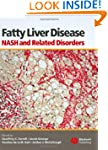 Fatty Liver Disease: NASH and Related...