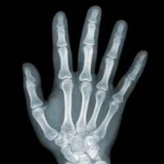 X Ray Body Scanner