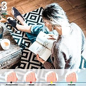 Caretras Bunion Corrector, Orthopedic Bunion Splint, Big Toe Separator Pain Relief, Hammer Toe Straightener, Day Night Support for Women Men (Simple Elegant Splints) (Color: Simple Elegant Splints, Tamaño: Simple Elegent Splints)
