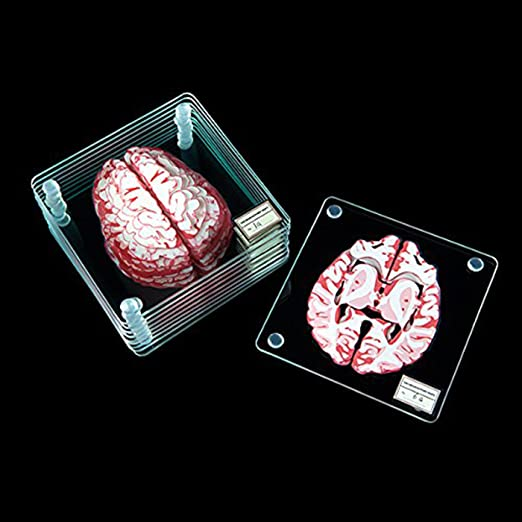 Amazon.com | Brain Specimen Coasters: Coasters