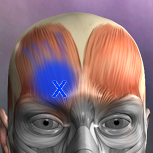 Muscle Trigger Point Anatomy is the Free App of the Day
