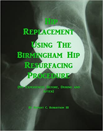 Hip Replacement Using The Birmingham Hip Resurfacing Procedure: My Experiences Before, During and After