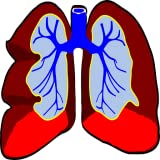 Mesothelioma Treatment & Mesothelioma Symptoms