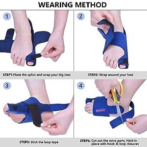 Bunion Corrector by Quanquer [Pair] - Bunion Splint Toe Straightener Brace for Hallux Valgus Pain Relief Fits Men & Women (Blue) (Color: Blue)