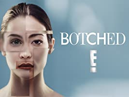 Botched, Season 3
