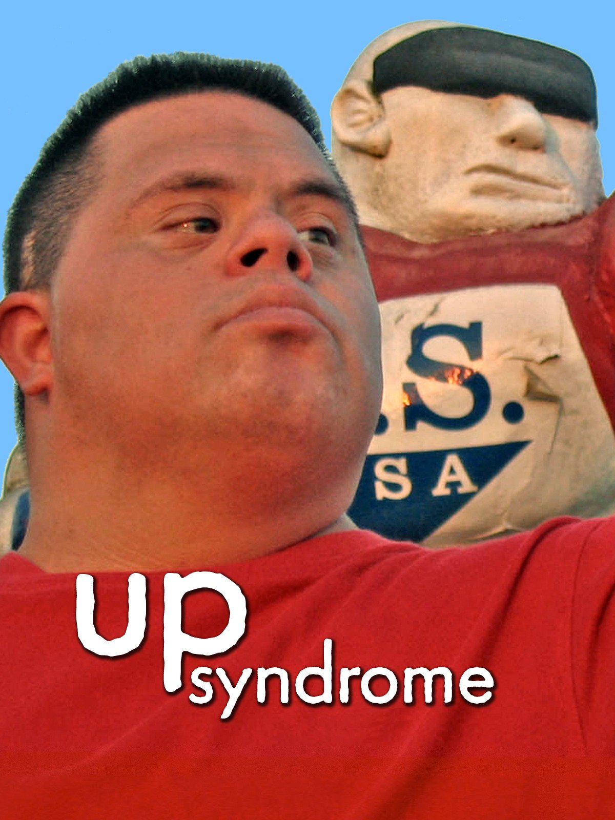 Up Syndrome