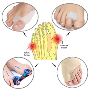 Bunion Corrector & Bunion Relief Protector Sleeves Kit - Treat Pain in Hallux Valgus, Big Toe Joint, Hammer Toe, Toe Separators Spacers Straighteners