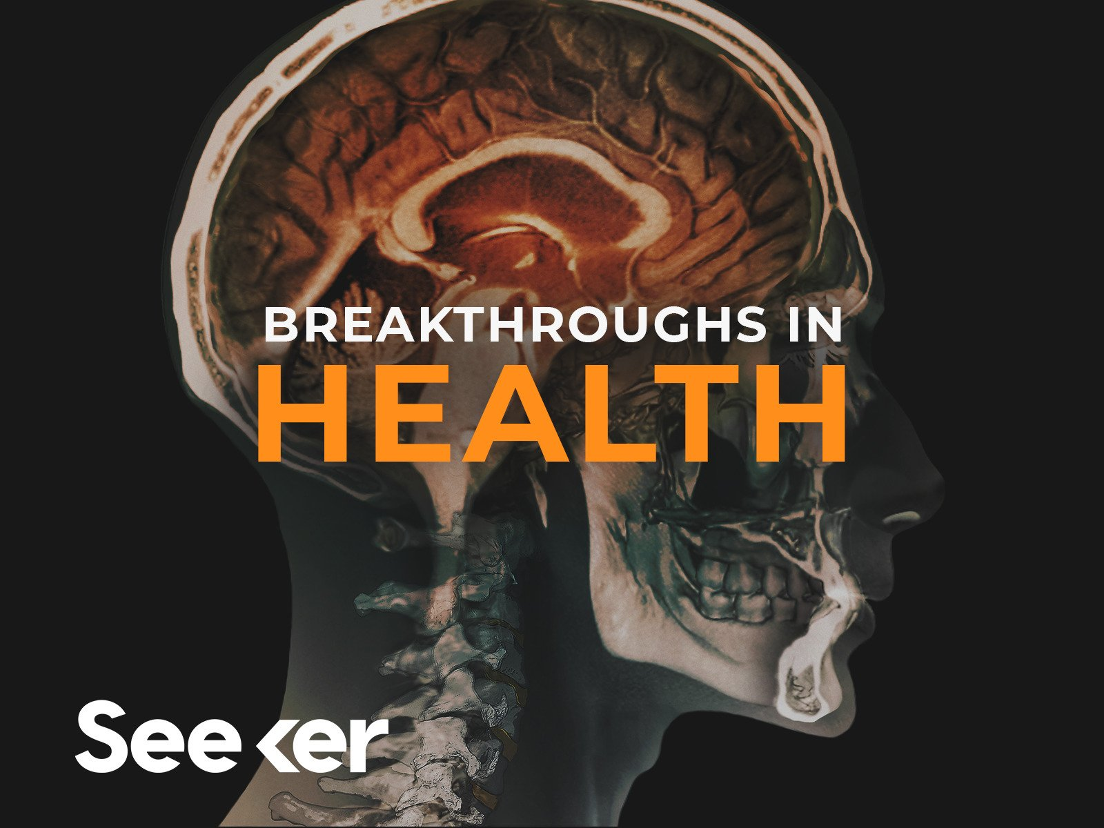 Breakthroughs In Health on Amazon Prime Instant Video UK