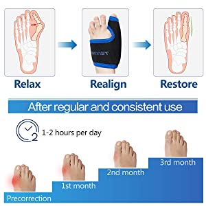 Bunion Corrector and Toe Straightener & Adjustable Orthopedic Pneumatic Bunion Splints Relief Hallux Valgus Bunion Pain with Splint Aid Treatment for Women and Men (Left Foot) (Color: Left Foot)