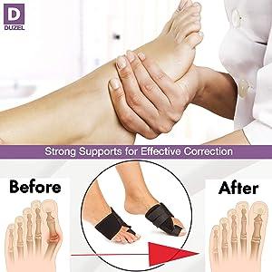 Bunion Splints Bunion Corrector - Bunion Brace for Hallux Valgus Bunion Pain Relief - Big Toe Straightener Bunion Splint - Corrector Bunion (Color: Black, Tamaño: universal)