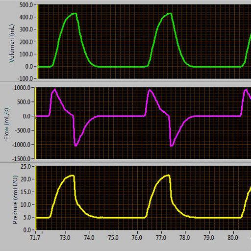 ventilator-waveforms