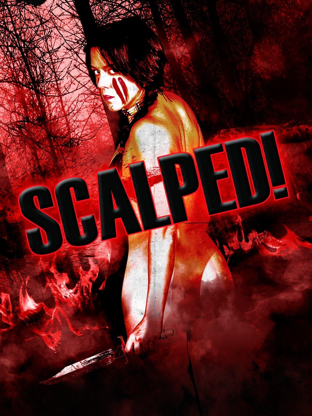 Scalped!