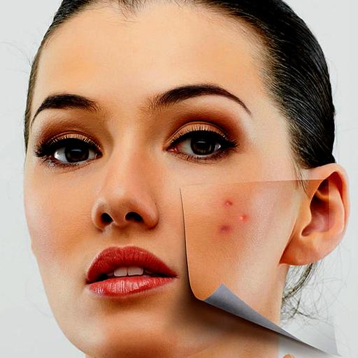 acne-remover