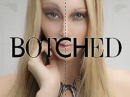 Botched Season 1
