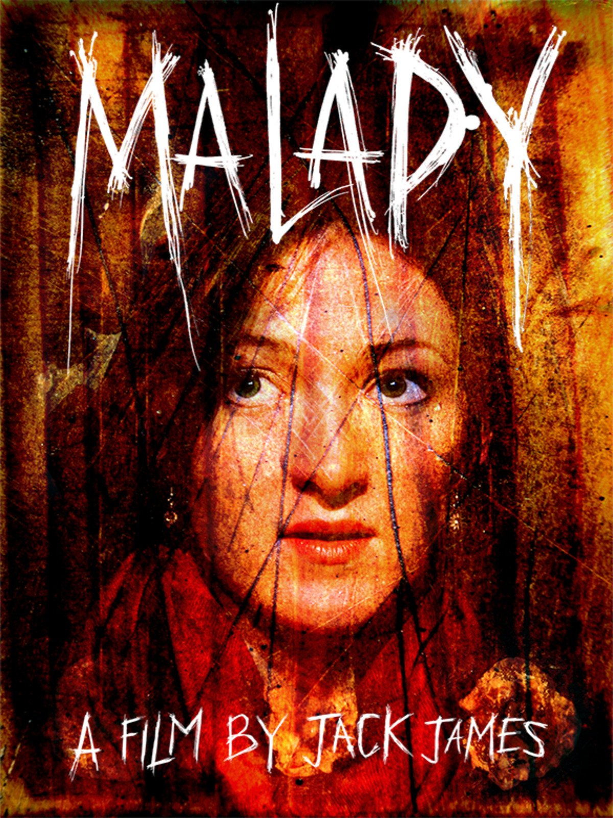 Malady on Amazon Prime Instant Video UK