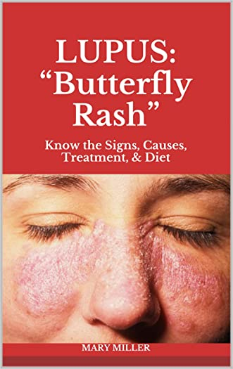 "LUPUS: ""Butterfly Rash"": Know the Signs, Causes, Treatment, & Diet"
