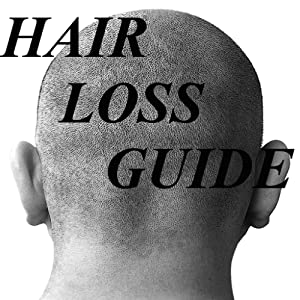 Amazon.com: Hair Loss Prevention Guide!: Appstore for Android