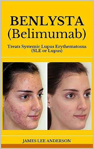 BENLYSTA (Belimumab): Treats Systemic Lupus Erythematosus (SLE or Lupus)