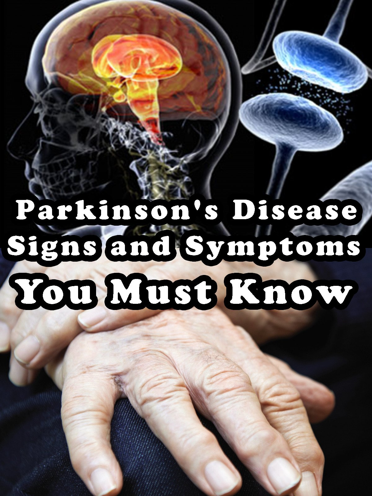 Parkinson's Disease - Signs and Symptoms You Must Know