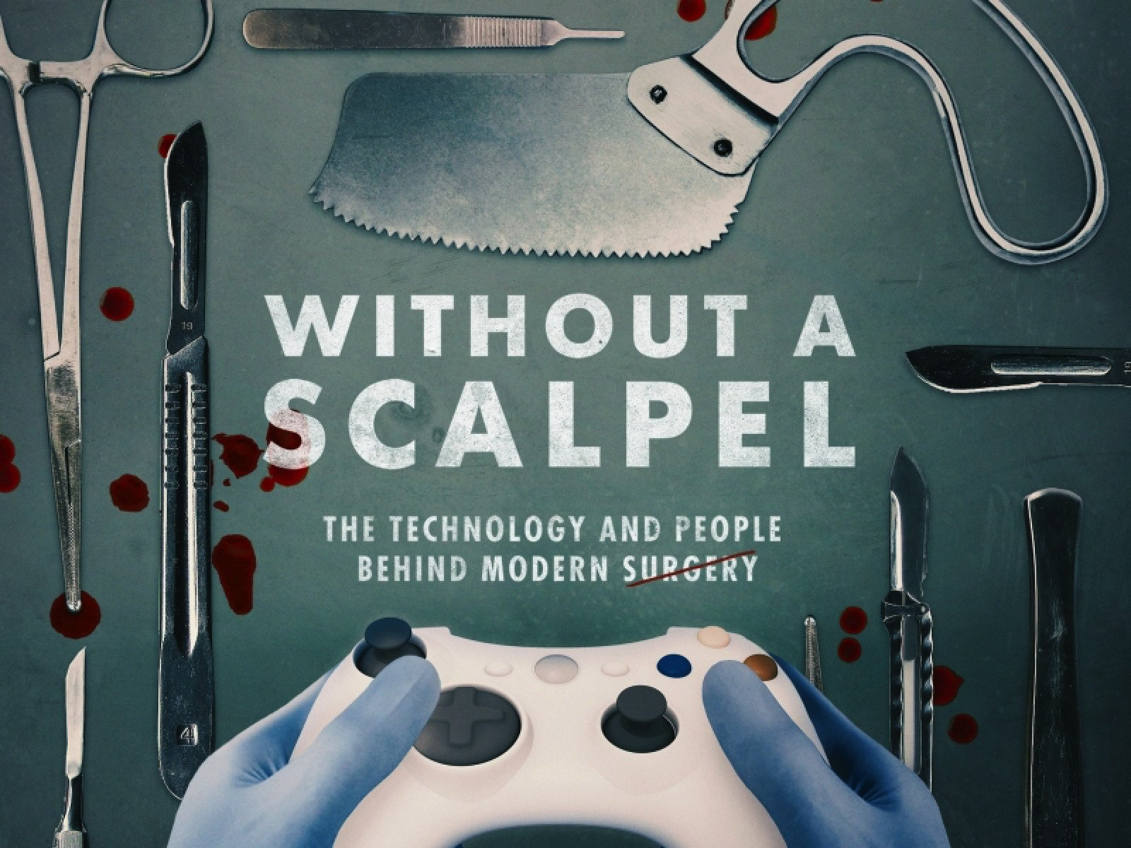Without a Scalpel on Amazon Prime Instant Video UK