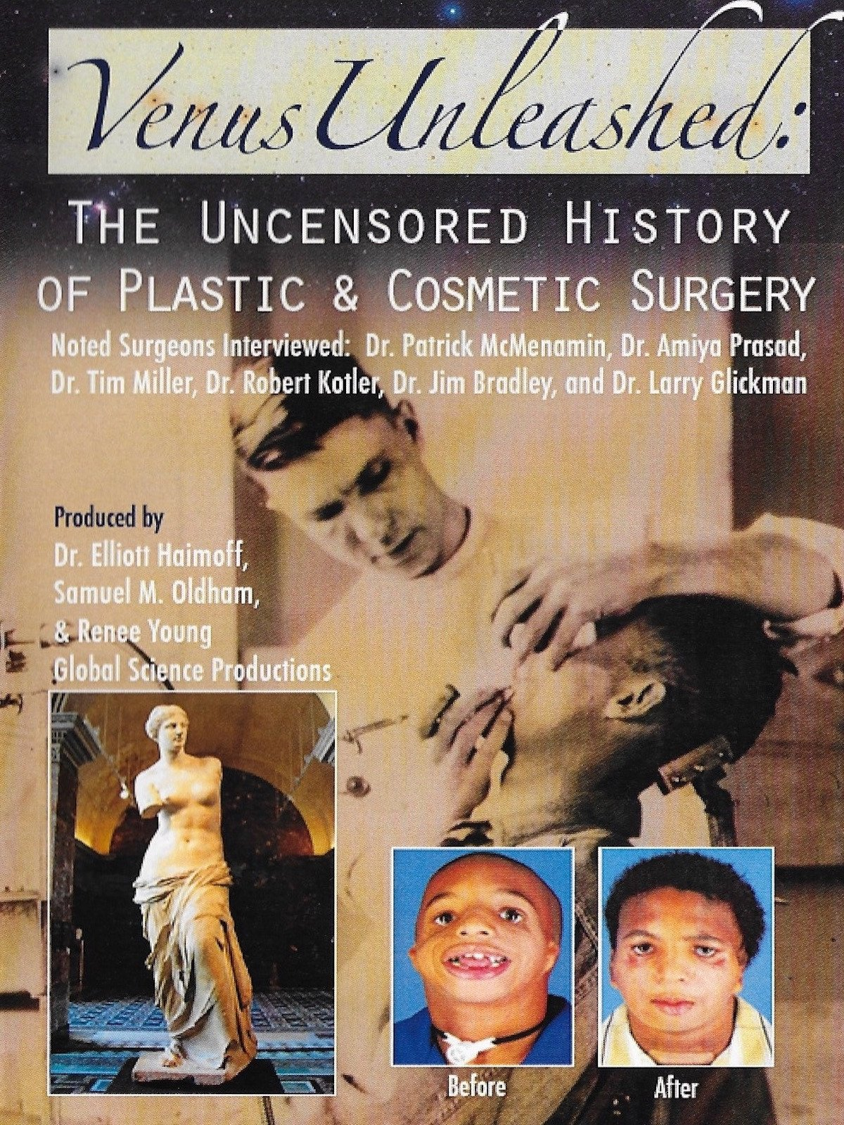 Venus Unleashed: The Uncensored History of Plastic and Cosmetic Surgery on Amazon Prime Instant Video UK