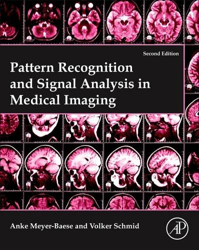 pattern-recognition-and-signal-analysis-in-medical-imaging-second-edition