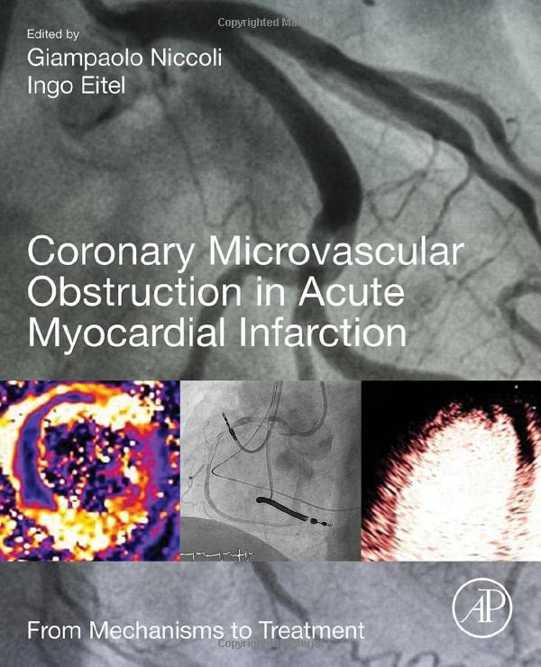 coronary-microvascular-obstruction-in-acute-myocardial-infarction-from-mechanisms-to-treatment