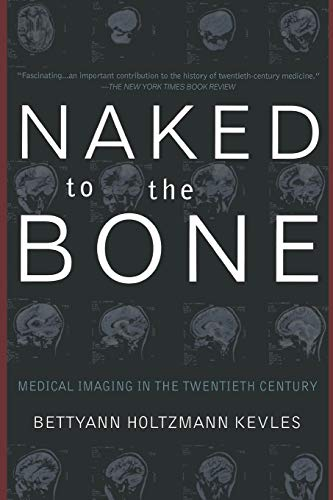 naked-to-the-bone-medical-imaging-in-the-twentieth-century