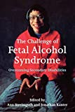 Kanter, Jonathan: The Challenge of Fetal Alcohol Syndrome: Overcoming Secondary Disabilities