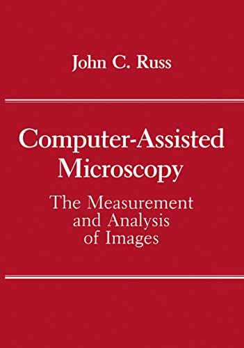 computer-assisted-microscopy-the-measurement-and-analysis-of-images