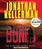 Kellerman, Jonathan: Bones: An Alex Delaware Novel (Alex Delaware Novels)