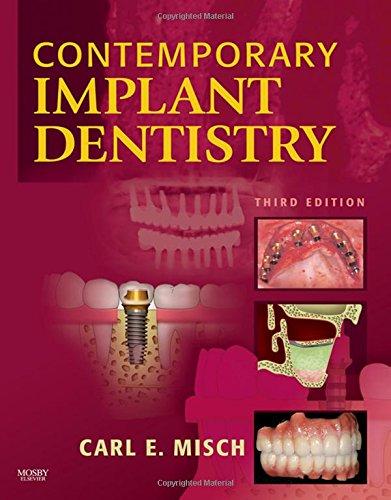contemporary-implant-dentistry-3e