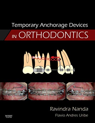 temporary-anchorage-devices-in-orthodontics-1e
