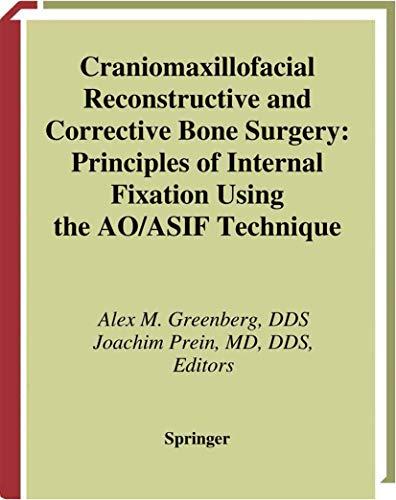 craniomaxillofacial-reconstructive-and-corrective-bone-surgery-principles-of-internal-fixation-using-ao-asif-technique