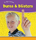 Angela Royston: Burns and Blisters (It's Not Catching) (It's Not Catching)