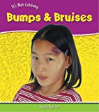 Angela Royston: Bumps and Bruises (It's Not Catching) (It's Not Catching)