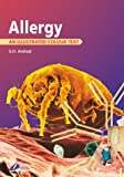 Arshad, S. Hasan: Allergy: An Illustrated Colour Text