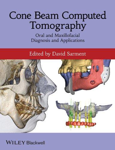 cone-beam-computed-tomography-oral-and-maxillofacial-diagnosis-and-applications