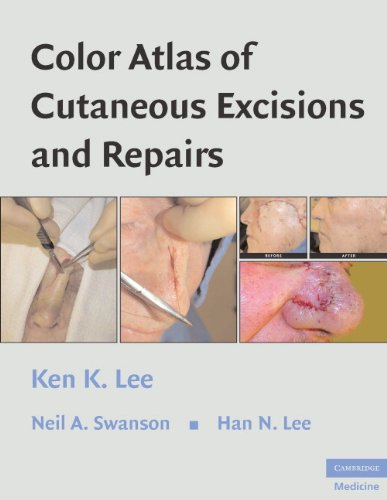 color-atlas-of-cutaneous-excisions-and-repairs
