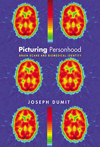 picturing-personhood-brain-scans-and-biomedical-identity-in-formation